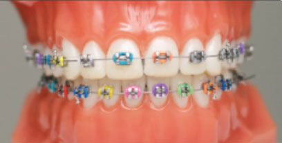 Types Of Braces Smile Design Amp Beyond Los Angeles